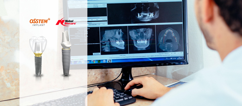 Fájdalommentes implantációs fogpótlás. DR. Varajti Artúr fogorvos, szájsebész néz egy röntgen felvéltel a számítógépen.