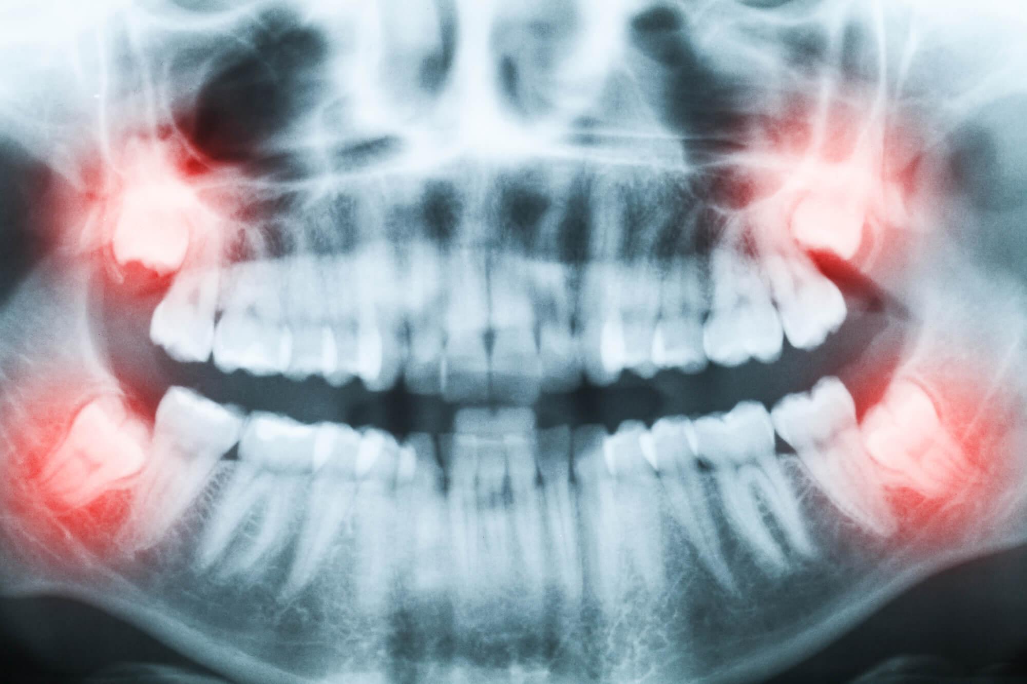 A bölcsességfog eltávolítás műtét előtti röntgen felvétel.