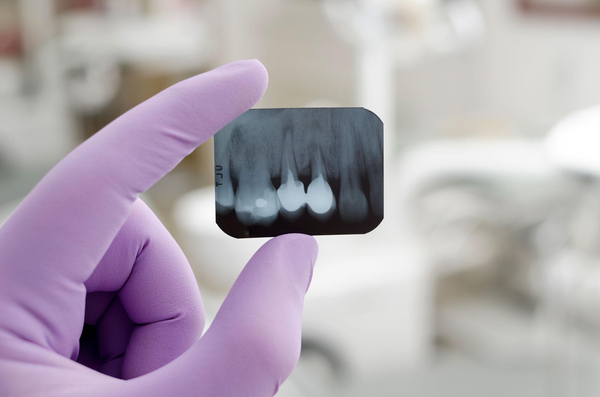 Ciszta műtét előtti röntgen felvételt tart a kezében a szájsebész.