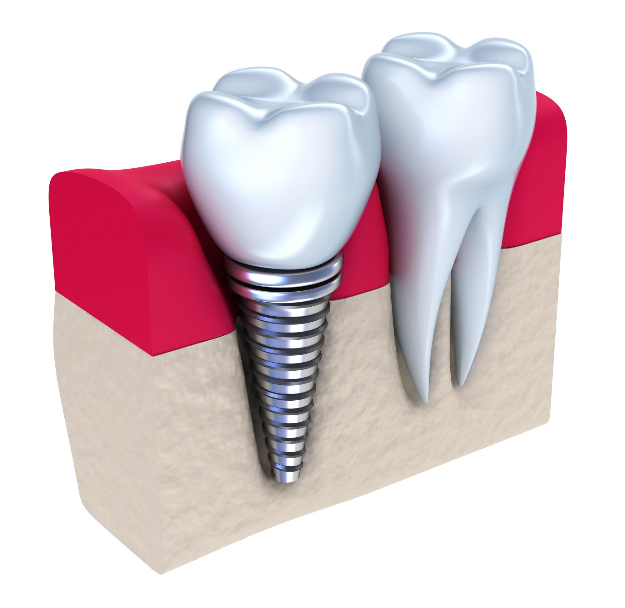 Implantációs fogpótlás 3D ábrázolása egy-egy fog hiánya esetén.