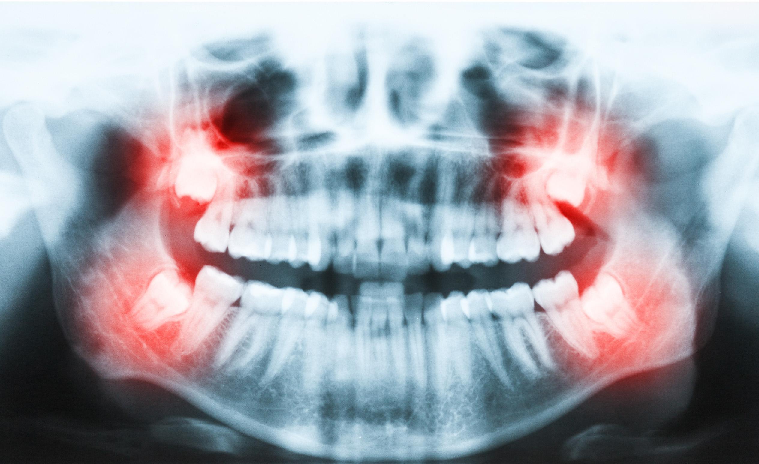 Fogászati röntgen felvétel, bölcsességfog műtét előtt.