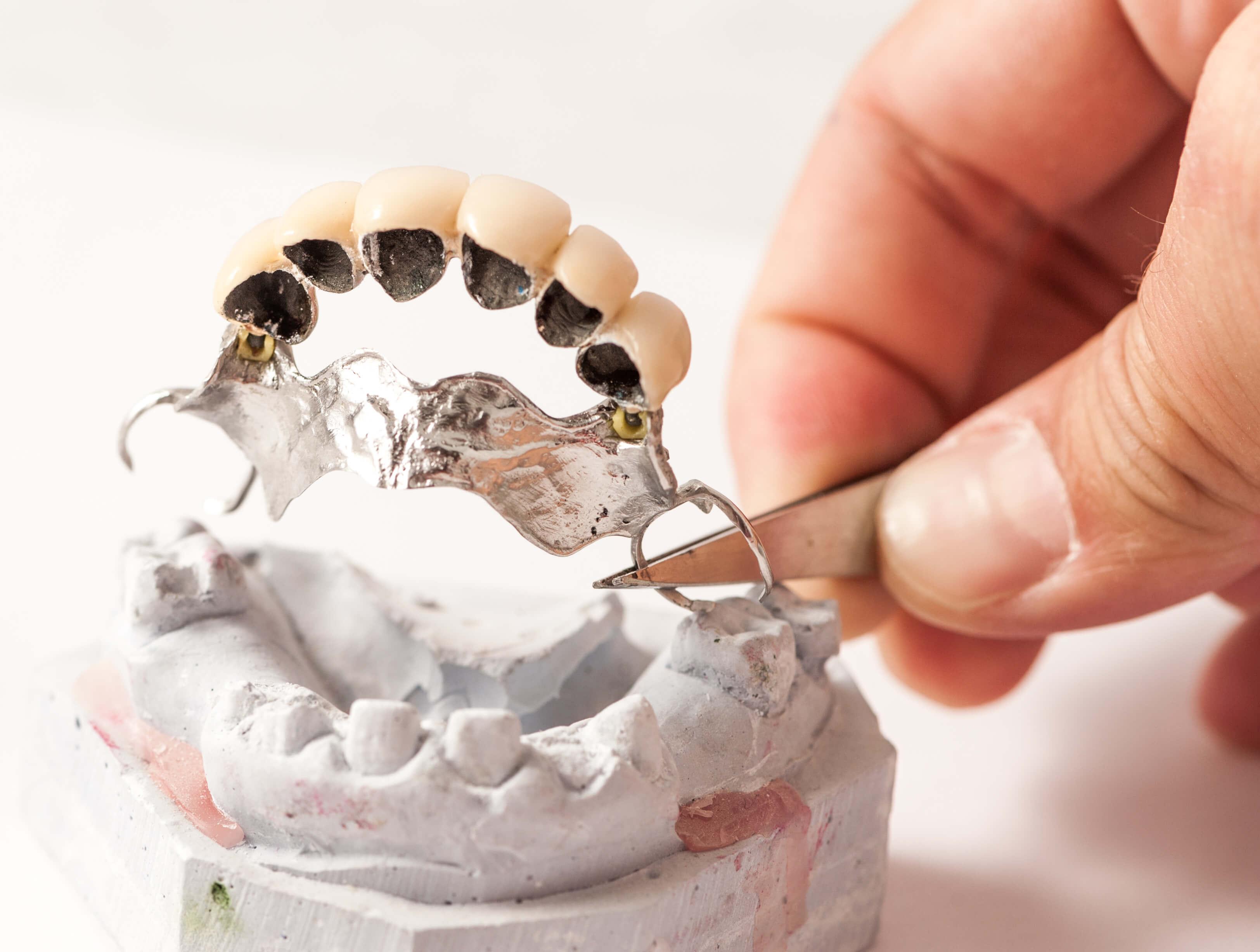 Hagyományos részleges fogsor, fogimlantátum