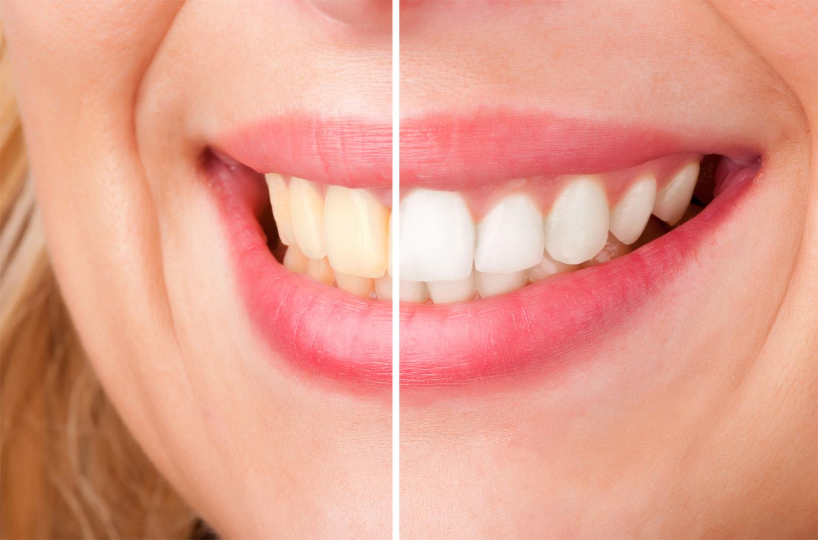 Női mosoly a rendelői fogfehérítés előtt és után.