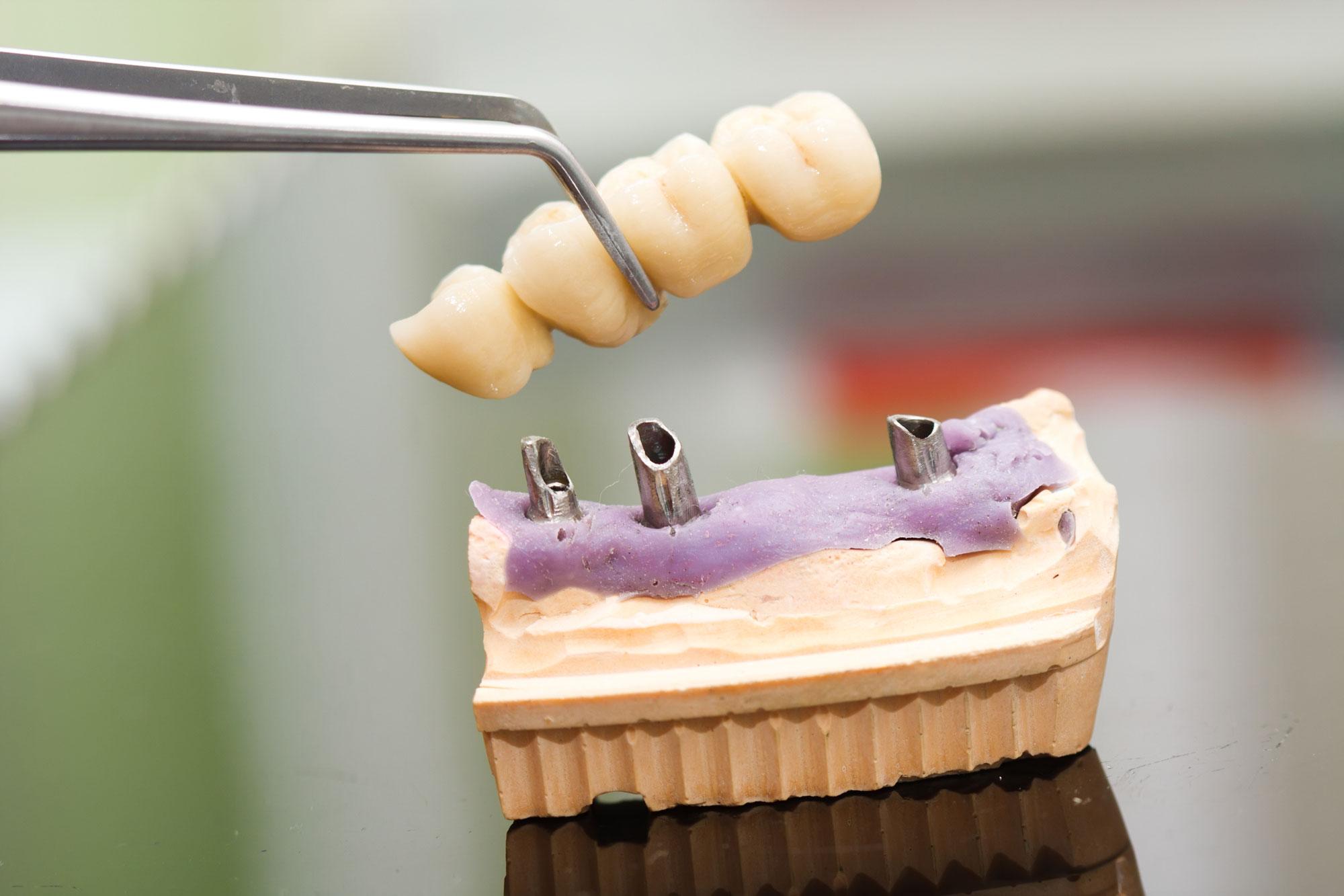 Implantációs fogpótlás sorvégi foghiányok esetén.