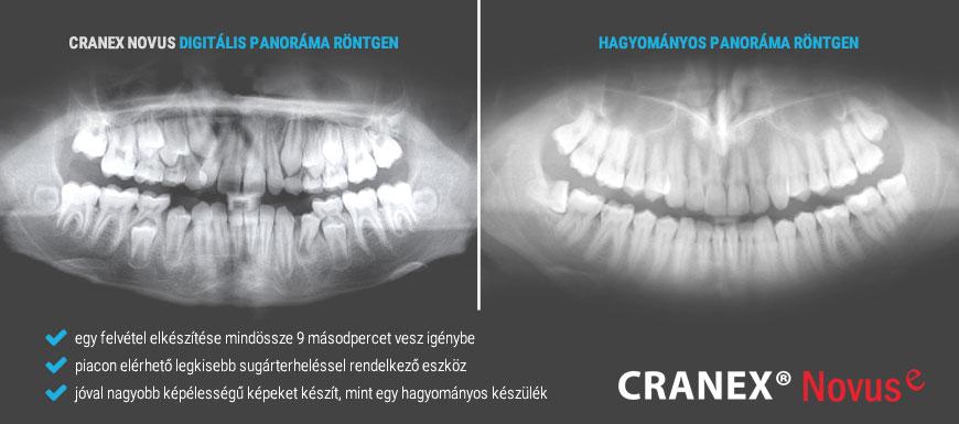 Kép amin egy digitális és egy hagyományos panoráma röntgen felvétel.