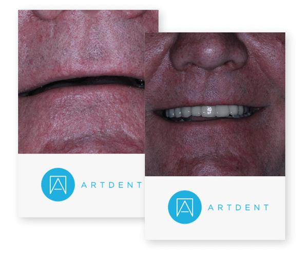 artdent-testimonial-1